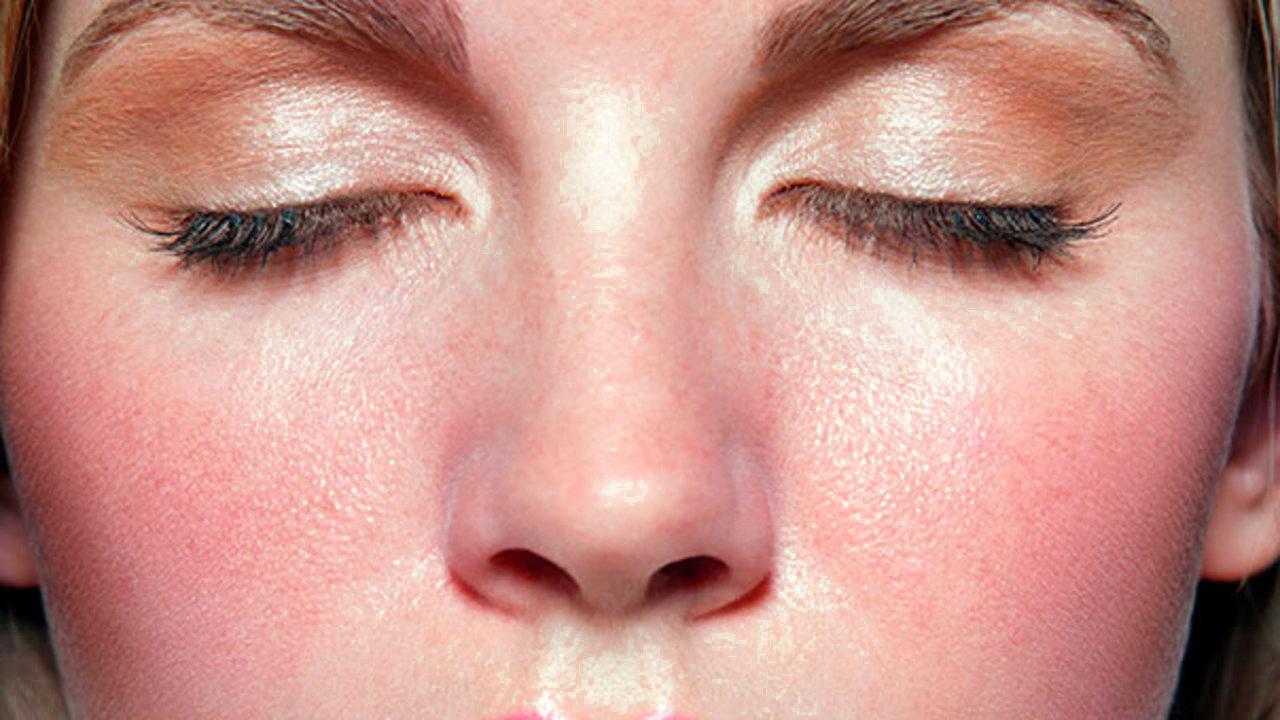 Traitement de la rosacée | Clinique Médico Esthétique Longueuil