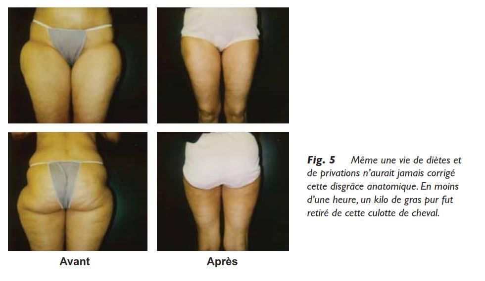 liposuccion, La graisse, l'amaigrissement et la liposuccion?