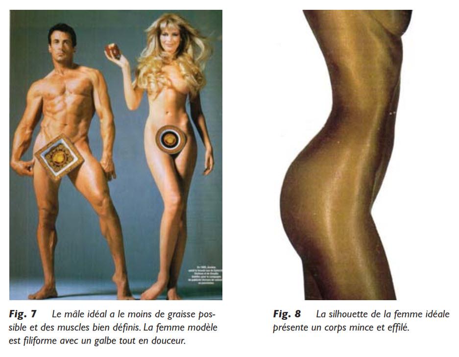 graisseux, Le tissu graisseux, Medicoesthetique.com, Medicoesthetique.com