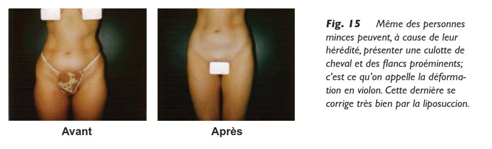 graisse, La distribution de la graisse chez l'humain, Medicoesthetique.com, Medicoesthetique.com