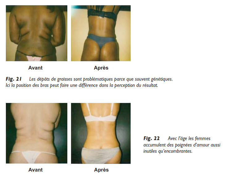 graisse, Les dépôts de graisse génétiques, Medicoesthetique.com