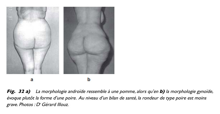 liposuccion, Obésité et liposuccion, Medicoesthetique.com