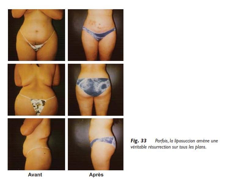 liposuccion, Obésité et liposuccion, Medicoesthetique.com, Medicoesthetique.com