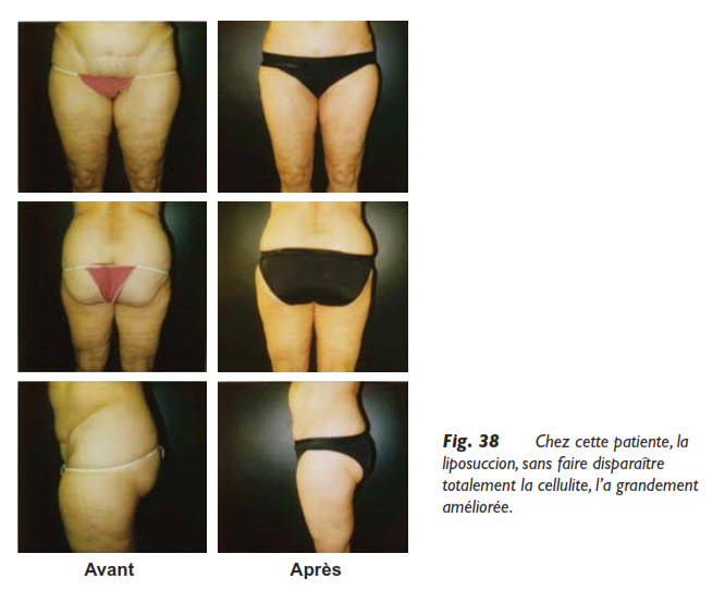 cellulite, Cellulite et liposuccion, Medicoesthetique.com