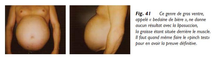 liposuccion, La consultation en vue d'une liposuccion, Medicoesthetique.com, Medicoesthetique.com
