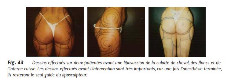 liposuccion, Comment se passe une liposuccion?, Medicoesthetique.com, Medicoesthetique.com