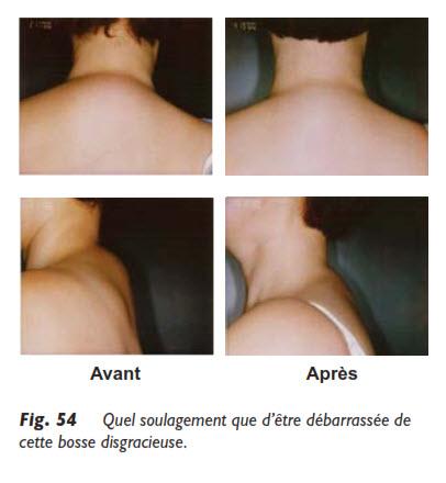 liposuccion, Survol des parties pouvant bénéficier d'une liposuccion