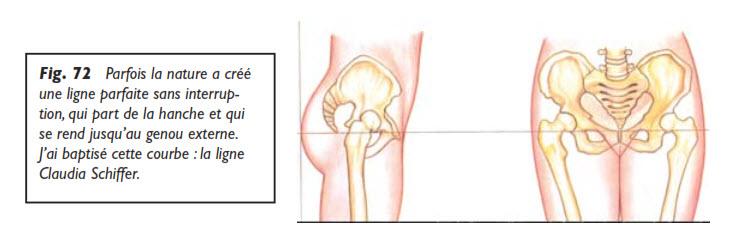 liposuccion, Survol des parties pouvant bénéficier d'une liposuccion, Medicoesthetique.com, Medicoesthetique.com