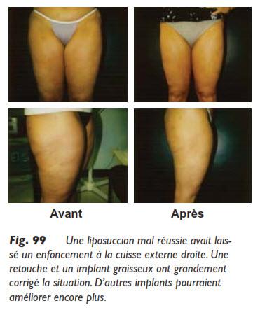 liposuccion, Questions et réponses sur la liposuccion