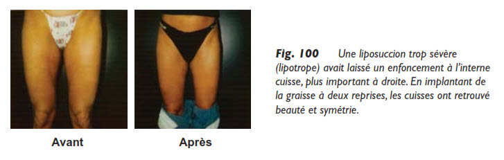 liposuccion, Questions et réponses sur la liposuccion, Medicoesthetique.com