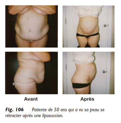 abdomen, Liposuccion de l'abdomen