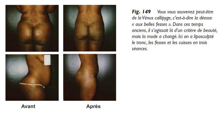 fesses, La liposuccion des fesses, Medicoesthetique.com, Medicoesthetique.com