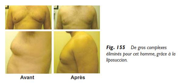 seins, La liposuccion des seins chez l'homme, Medicoesthetique.com