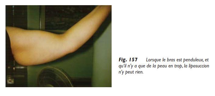 bras, La liposuccion des bras