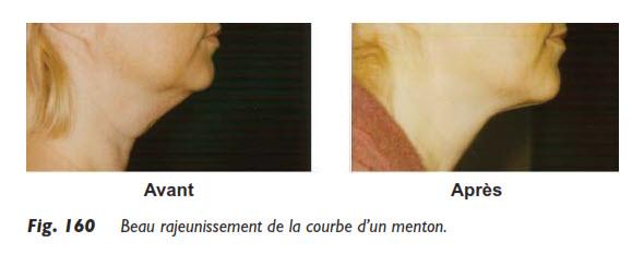 menton, La liposuccion du menton, Medicoesthetique.com, Medicoesthetique.com