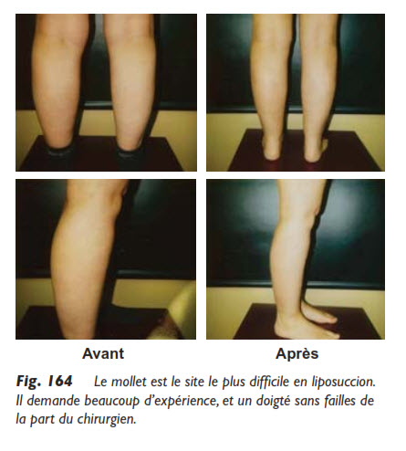 Mollets, La liposuccion des mollets & chevilles, Medicoesthetique.com