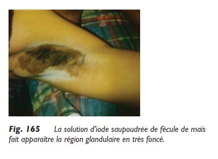 hyperhydrose, Traitement de l'hyperhidrose, aux aisselles par la liposuccion, Medicoesthetique.com
