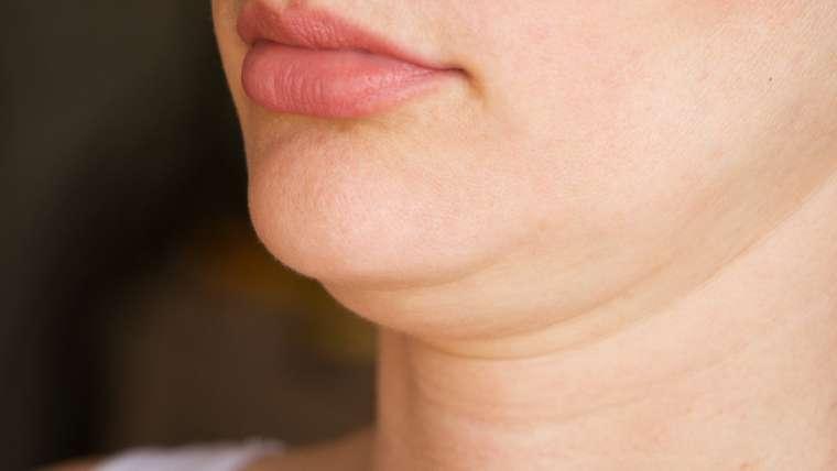 La liposuccion du menton