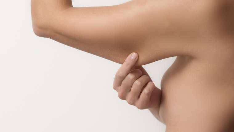 Relâchement de la peau