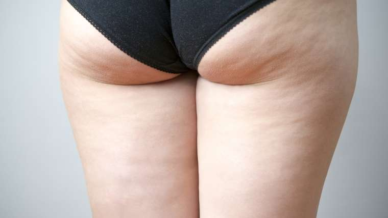 Cellulite et liposuccion