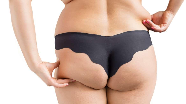 La liposuccion des fesses
