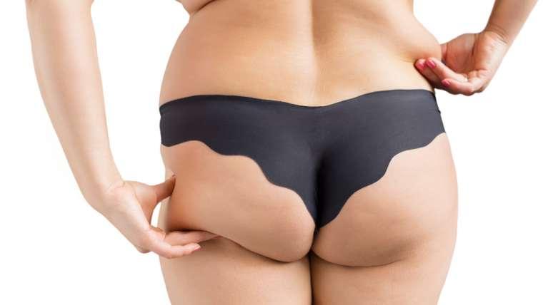 fesses, La liposuccion des fesses