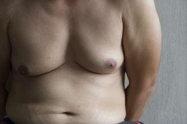 La liposuccion des seins chez l'homme